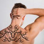 Remoción de tatuajes