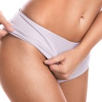 Renueva tu piel atenuando